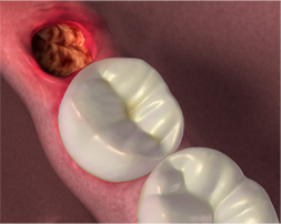 Dry socket after wisdom tooth extraction