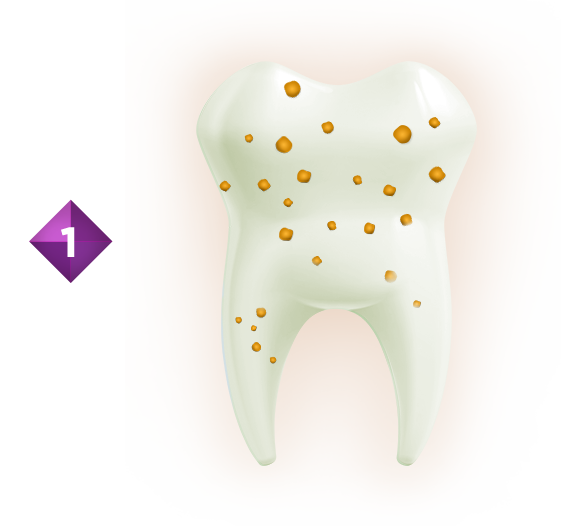 Sugars contained in many foods accumulate in dental plaque.